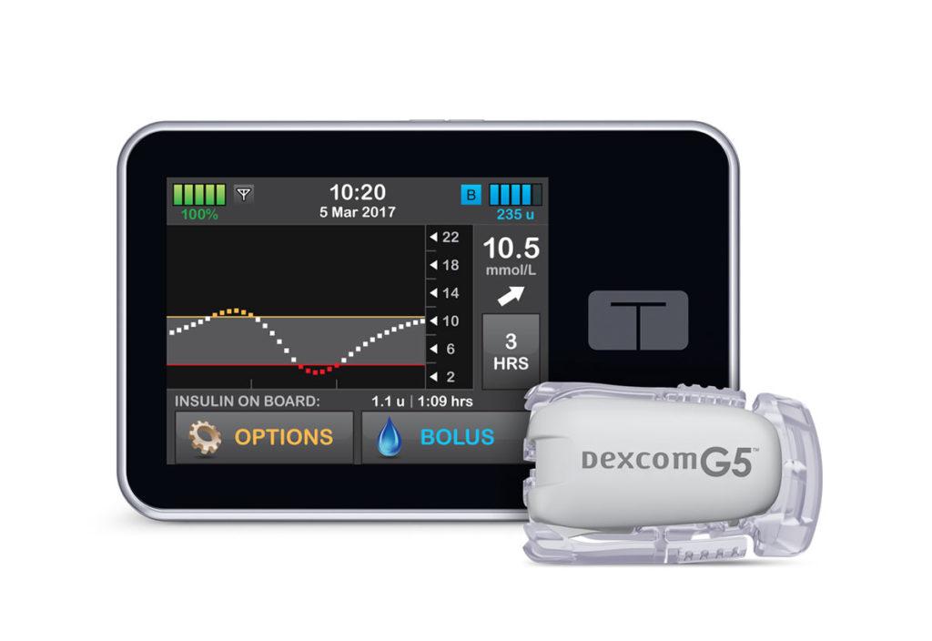 tslim-x2-insulin-pump-cgm-screen